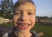 Mit einer Rakete einen Zahn ziehen