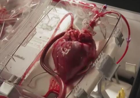 Ein schlagendes Herz